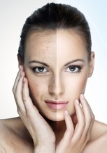 Skin Active Mesotherapy